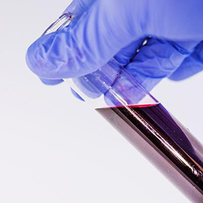 New blood test could help detect and locate cancer early on