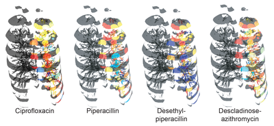 The Microbial Anatomy of an Organ