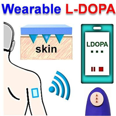 Wearable Electrochemical Microneedle Sensor for Continuous Monitoring of Levodopa: Toward Parkinson Management