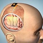 UC San Diego leads a $12.25 million grant to improve epilepsy treatment